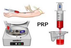 PRP behandeling